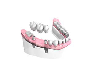 Remplacer plusieurs dents absentes ou abîmées au Kremlin Bicêtre