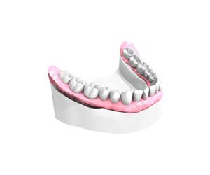 Remplacer toutes les dents absentes ou abîmées au Kremlin Bicêtre