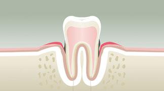 Parodontologie & Hygiène au Kremlin Bicêtre